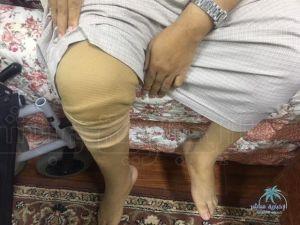 """بالفيديو والصور : احتكاك بالركبة يكلف مواطن بالأحساء بـ""""بتر"""" ساقه … ويناشد المسؤلين بعلاجة"""