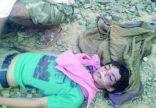 مليشيات الحوثي تعذب صبياً يمنياً ثم تعدمه لارتدائه قميصاً عليه صورة الملك سلمان
